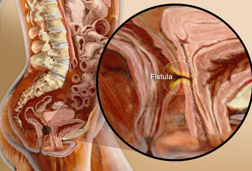 princ_rm_photo_of_fistula_inside_digestive_system